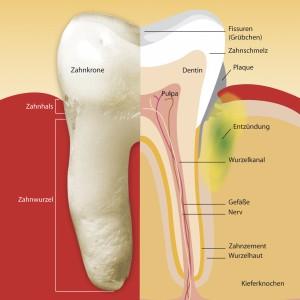 Das Zahnfleisch entzündet sich schleichend und bleibt auch in diesem Zustand lange schmerzfrei.  (Bild: prodente)